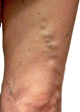 Varicose veins leg groin this in anterolateral vein distribution