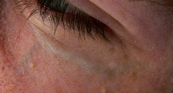 Blue veins under eyes can vary in extent