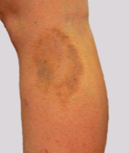 Burst vein on side of leg with resultant bruise