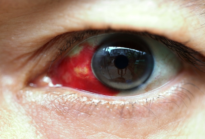 Burst vein in white of eye - a conjunctival haemorrhage