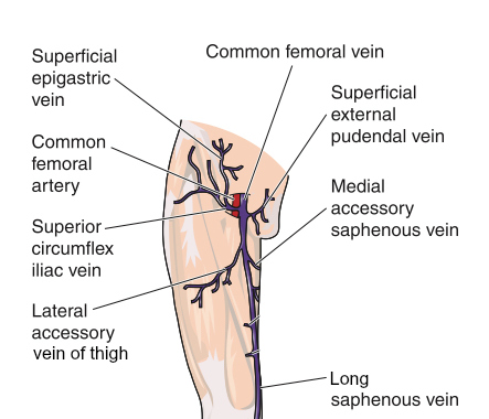 Varicose veins leg groin with anatomic diagram of draining veins