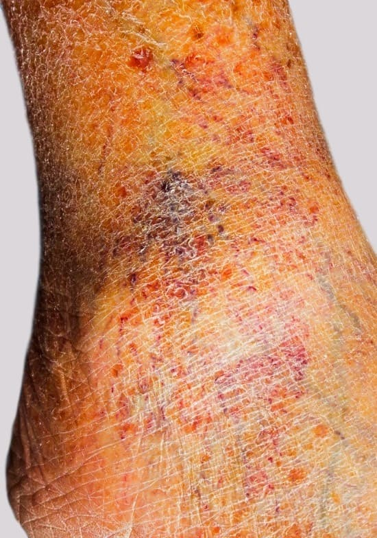 Itchy legs indicate underlying dry skin