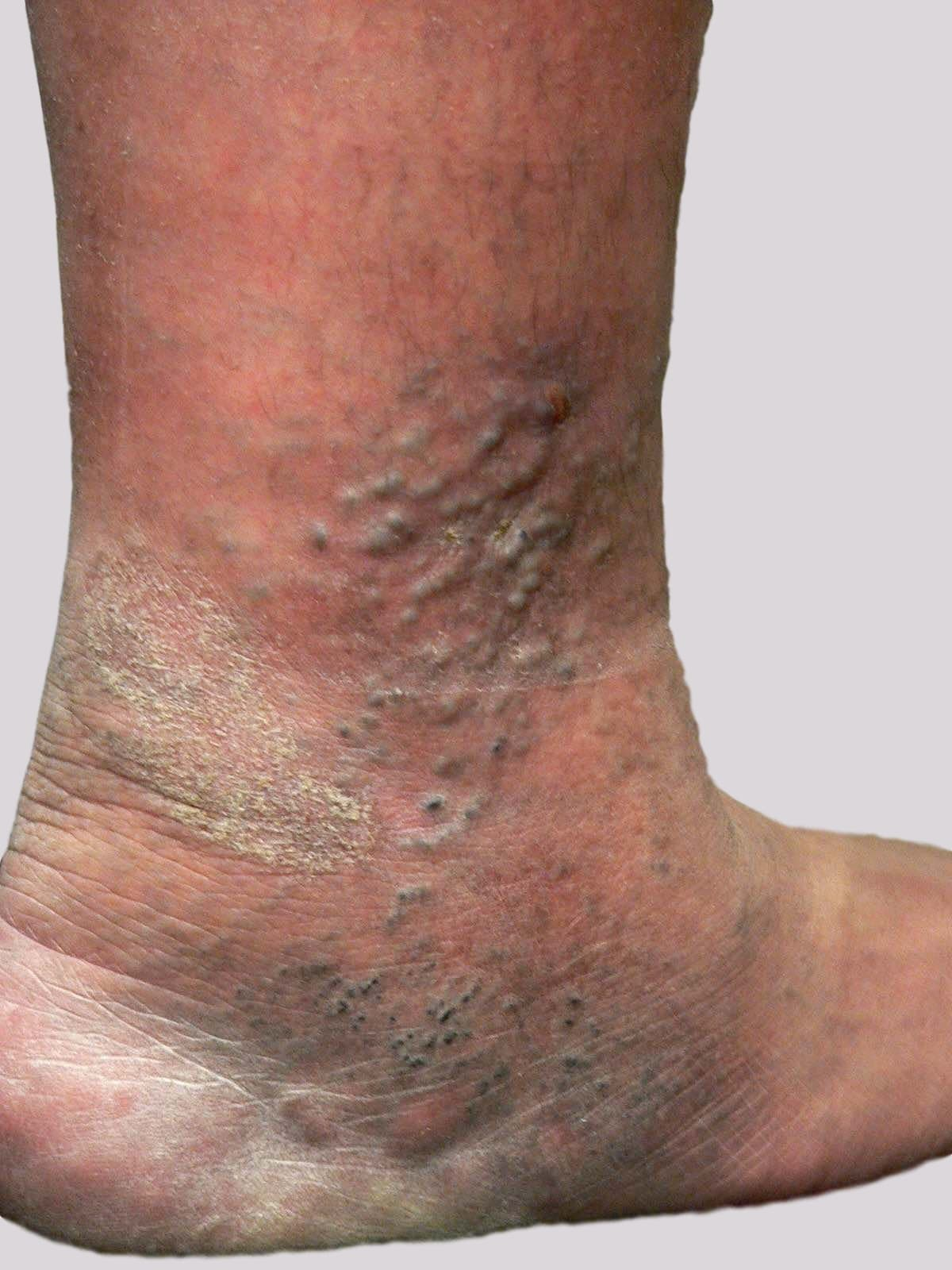 Eczema and varicose veins with very shallow