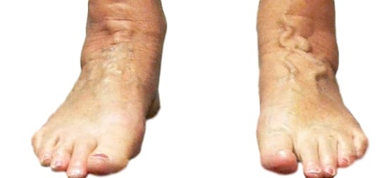 Varicose veins feet visible on top of feet
