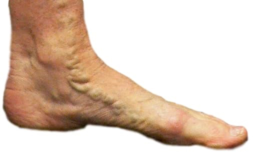 Varicose veins feet demonstrated with large one in inner aspect of foot