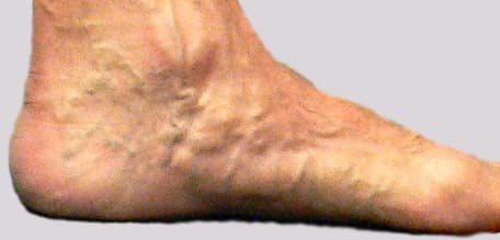 Leg veins pain with inside foot varicose veins may be all there is to see at times
