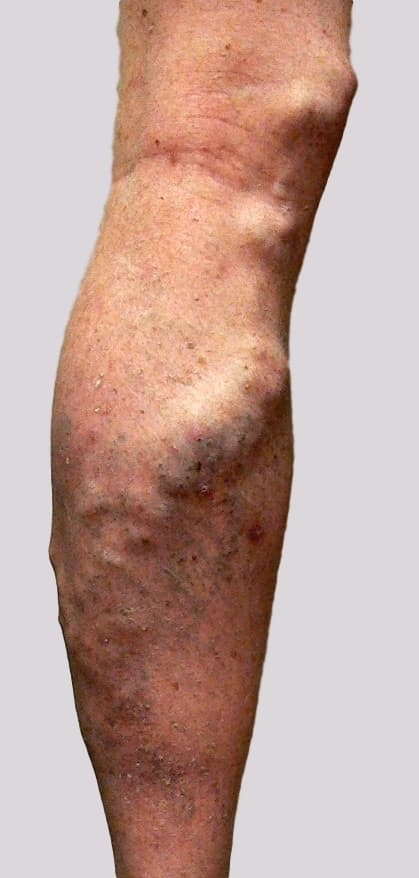 Varicose veins pain with vein inflammation at times