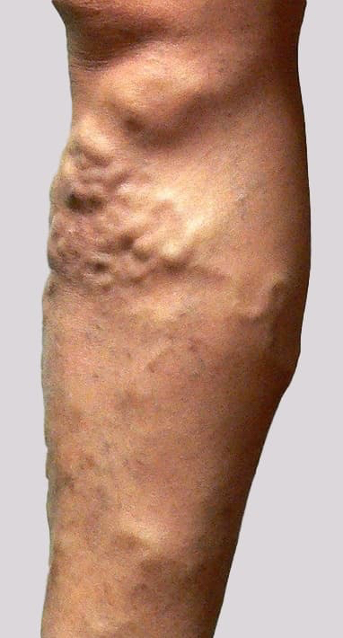 Large knotty varicose veins that could result in high flow bleeding from a burst vein with an injury