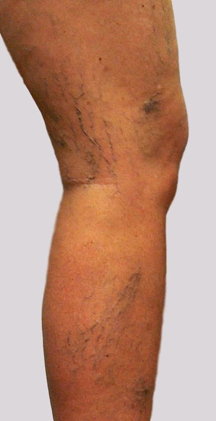 Leg Veins Pain can occur with lateral leg veins