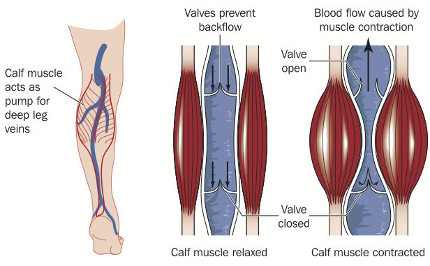 Varicose veins definition explanation beginning with the muscle pump - in this case the calf muscle pump returning blood back to your heart.