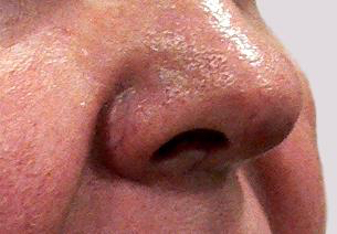 Veins on nose including the central underlying parts of the nose structure