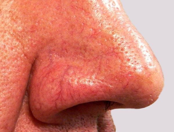 Veins on nose that are more extensive and obvious