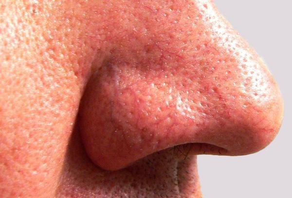 Veins on nose will increase over time with ageing and sun's damaging effects