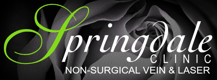 Springdale your local dedicated varicose vein clinic