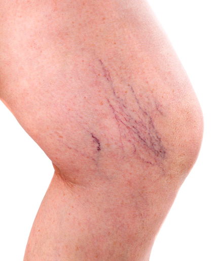 Varicose veins types with lateral veins appearing on the inside of the lower thigh