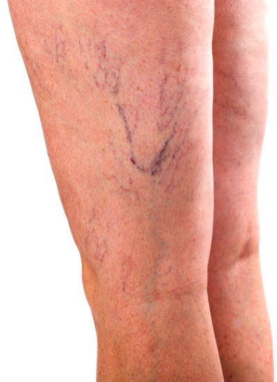 varicose veins types include the lateral vein system frequently with spider veins