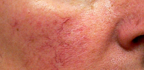 Unfortunately shallow spider veins on face can be very obvious