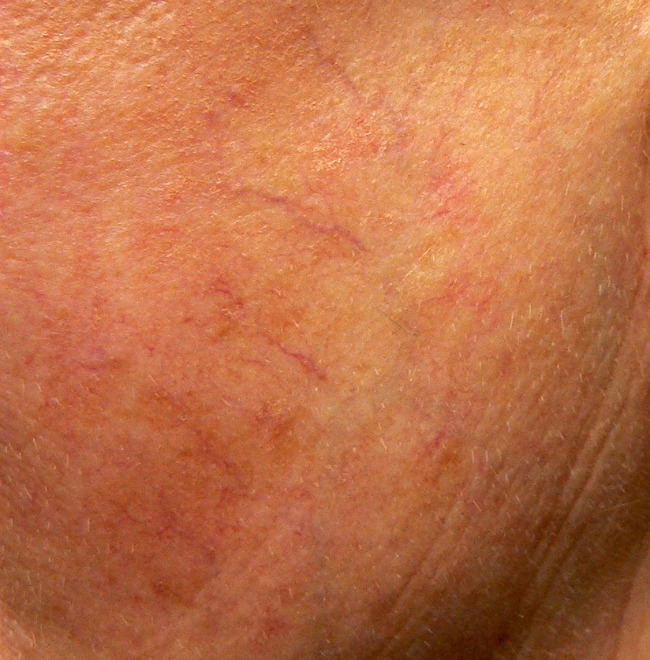 Spider veins on face in a different form