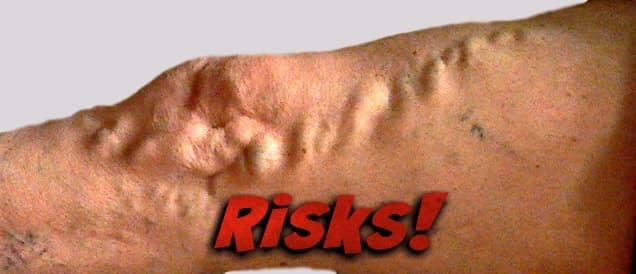 Varicose vein risks alert with large varicosities
