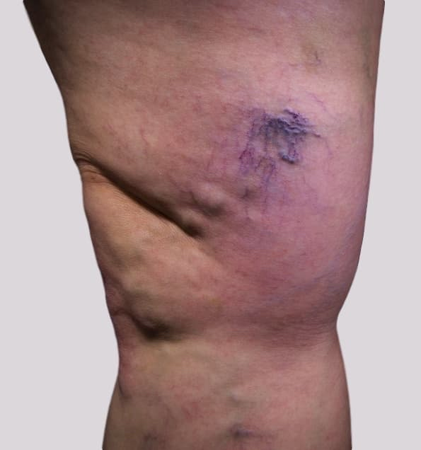 Varicose veins pain with veins over inside knee
