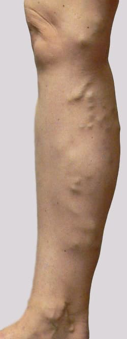 Varicose veins symptoms prominent veins inner leg