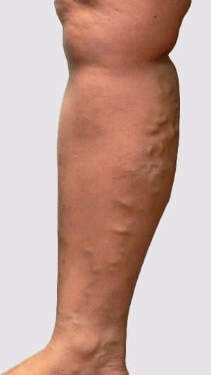 Varicose veins types demonstrating veins associated with the long saphenous vein