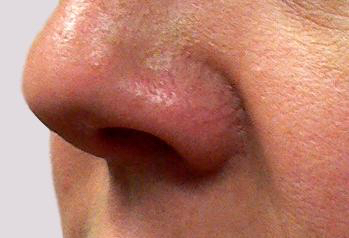 Veins on nose areas show so clearly to us and others as they are so shallowly located