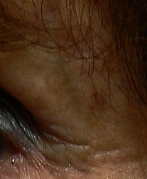 A reticular facial vein just under the eyebrow in older person
