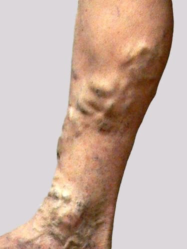 Eczema and varicose veins with large veins surrounded altered eczematous skin