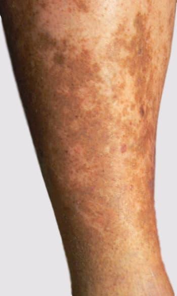 Varicose veins symptoms pigmentation changes